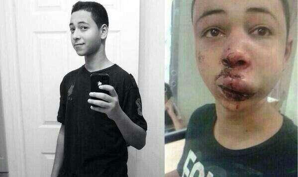 Tariq Khdeir, antes e depois da agressão (Reprodução)