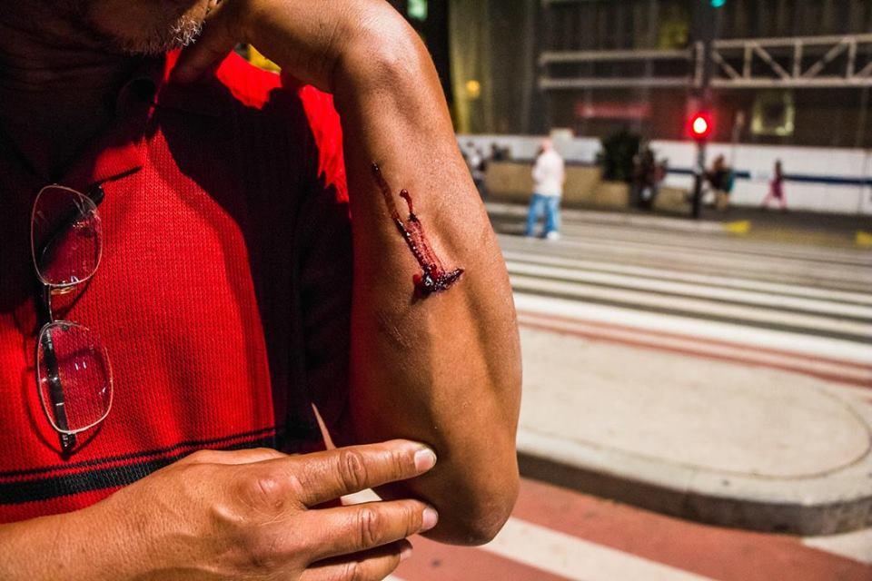 Dezenas de pessoas ficaram feridas com os estilhaços das bombas e as balas de borracha disparadas pela PM. (Foto: Sérgio Silva)