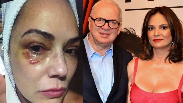 TJSP condena empresário bilionário por agressão a Luiza Brunet