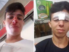 Jovem relata agressão, homofobia e negligência de seguranças em terminal de ônibus de SP