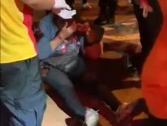 Vendedora de balões de 73 anos é arrastada por carro de luxo