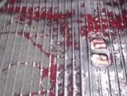 Morre criança de 8 anos baleada pela PM no Complexo do Alemão